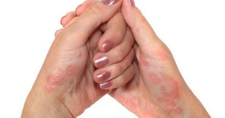 Psoriasi: come attenuarne i sintomi con i rimedi naturali