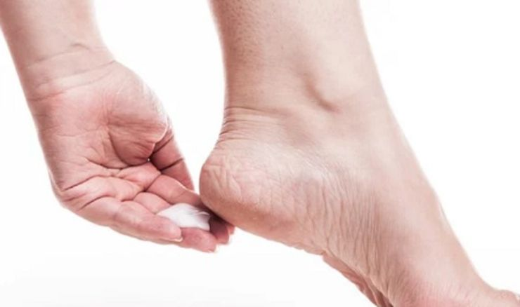Talloni screpolati: 3 rimedi per averli morbidi e sani