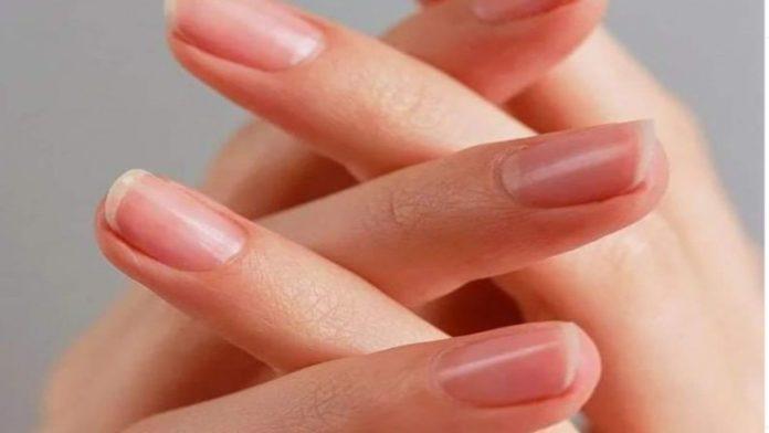 Righe sulle unghie: le cause e i rimedi naturali più efficaci