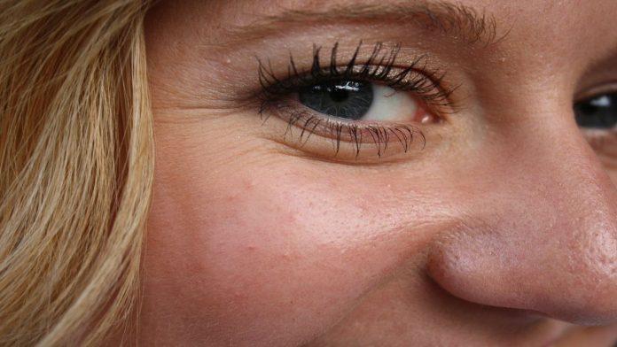Rughe contorno occhi: i rimedi naturali più efficaci per combatterle