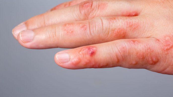 Scabbia: cos'è e come si cura con i rimedi naturali
