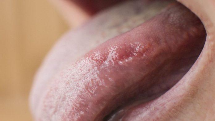 Bruciore lingua: cause, sintomi e rimedi