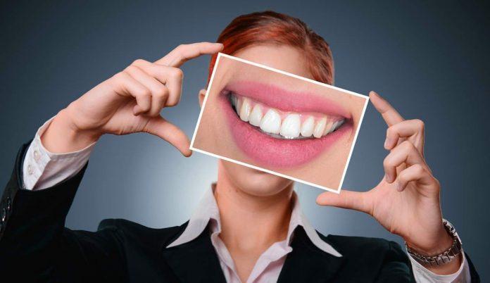 Denti bianchissimi