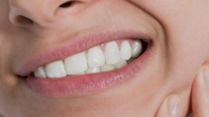 Denti del giudizio: a cosa servono e quando vanno estratti