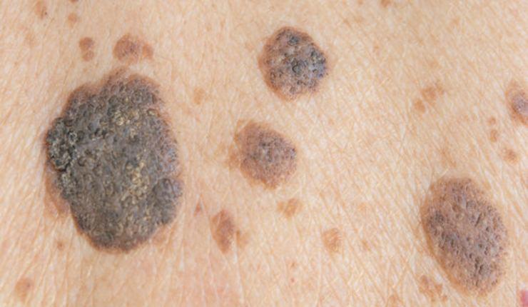 Distinguere neo e melanoma
