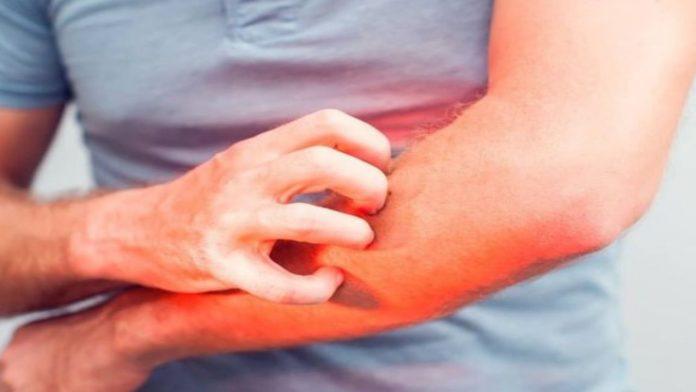 Orticaria: sintomi, cause e trattamenti più efficaci