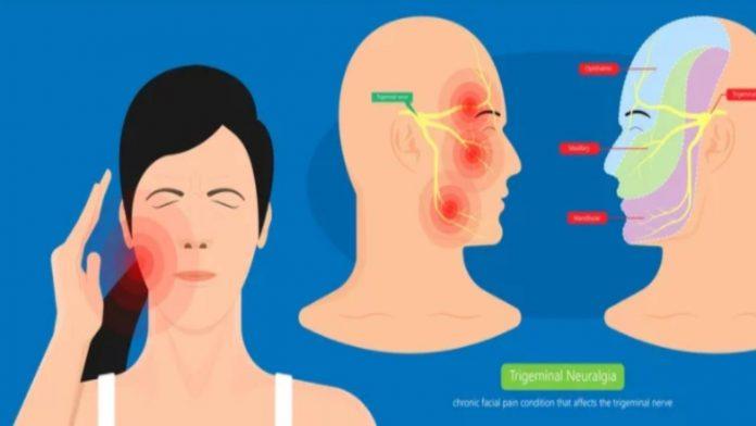 Nevralgia del trigemino: le cause scatenanti e rimedi naturali più efficaci