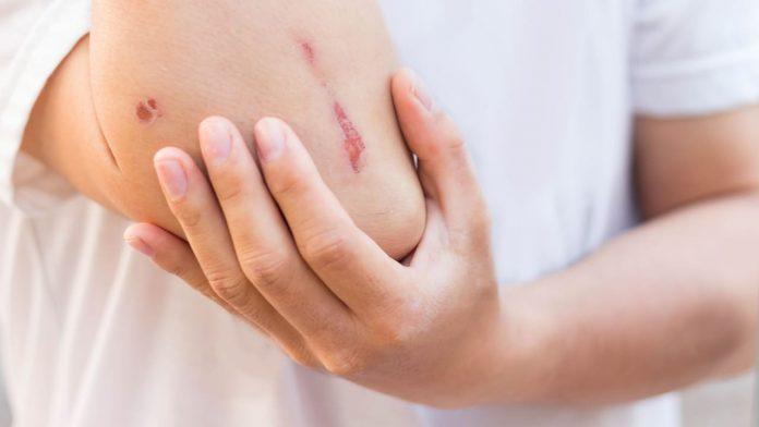 ferite come infettano