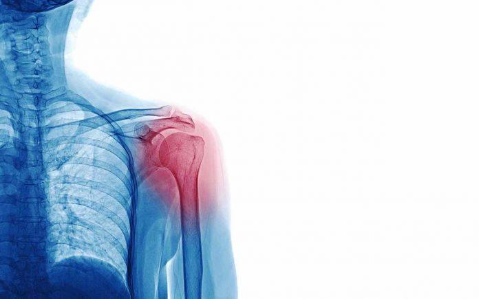 frattura spalla