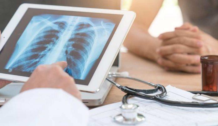 inviare una radiografia