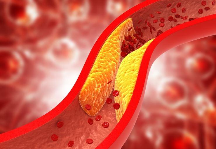 Perchè si parla di colesterolo buono e quello cattivo: Ecco le differenze?